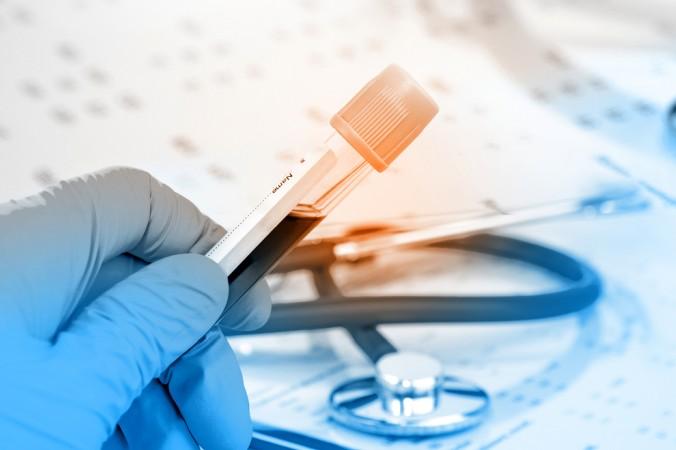 Die Wissenschaft hat sich stark mit Aspartam und dessen Auswirkungen beschäftigt. Die Beobachtungsstudien zeigen, dass es keinen kausalen Zusammenhänge zwischen Aspartam und Krebserkrankungen gibt. (#3)